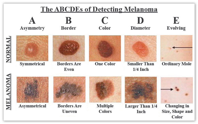 abcdes-of-melanoma-large (1)