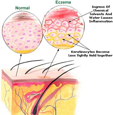 eczema-picture
