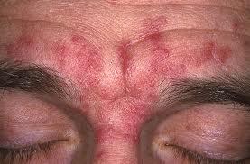 Seborrheic Dermatitis Dr Kenton Busch