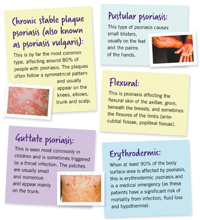 what does psoriasis look like on the skin